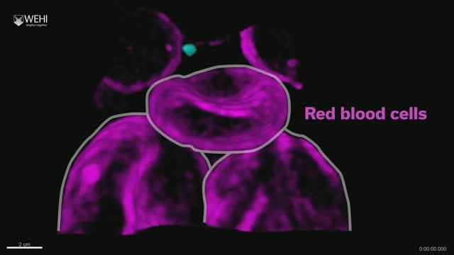 Malaria parasite invading red blood cell