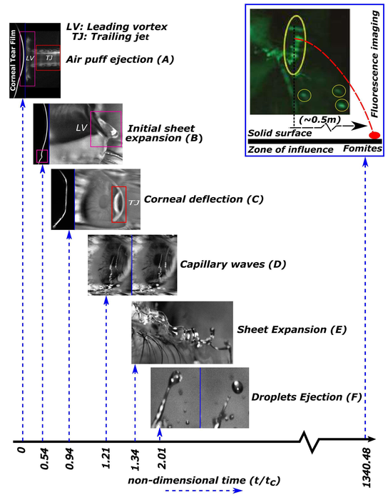 Noninvasive Eye Procedure Provides Potential Pathway for Virus, Disease Carriers
