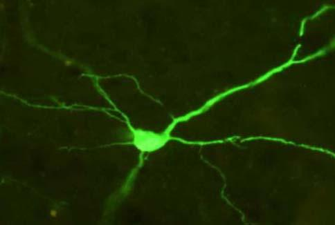 Cortical Neuron Expressing a Fluorescent Green Reporter Protein