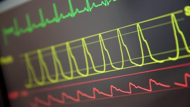 Big Data and ICUs