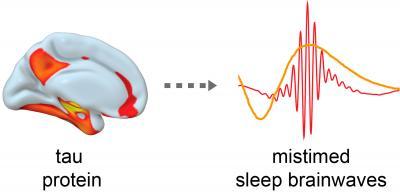 Tau Tangles Led to Disruption of Sleep Rhythms