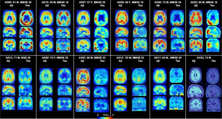 PET Scans of the Brains of Alzheimer's Patients