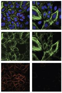 Researchers identify potentially druggable mutant p53 proteins that promote cancer growth
