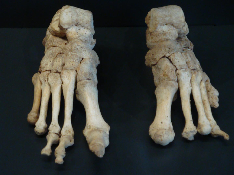 Leprotic Feet