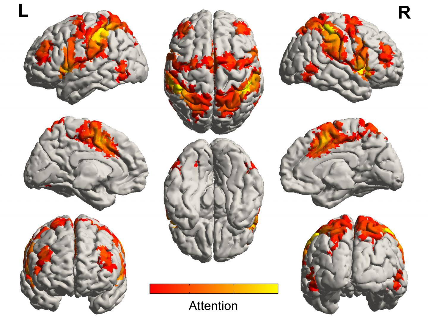 Brain Networks Involved in Processing Attention