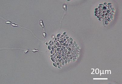 Antarctic Yeast <i>Mrakia blollopis</i> SK-4