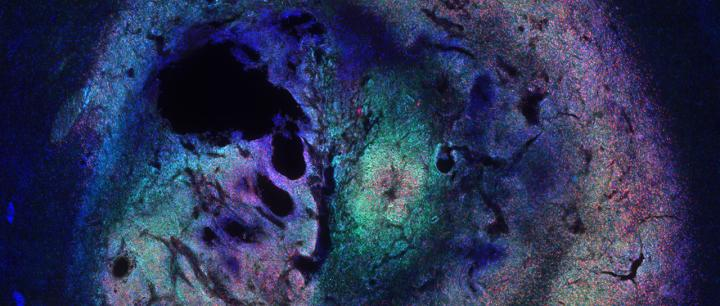 Cross-Section of Murine Braine Tumor