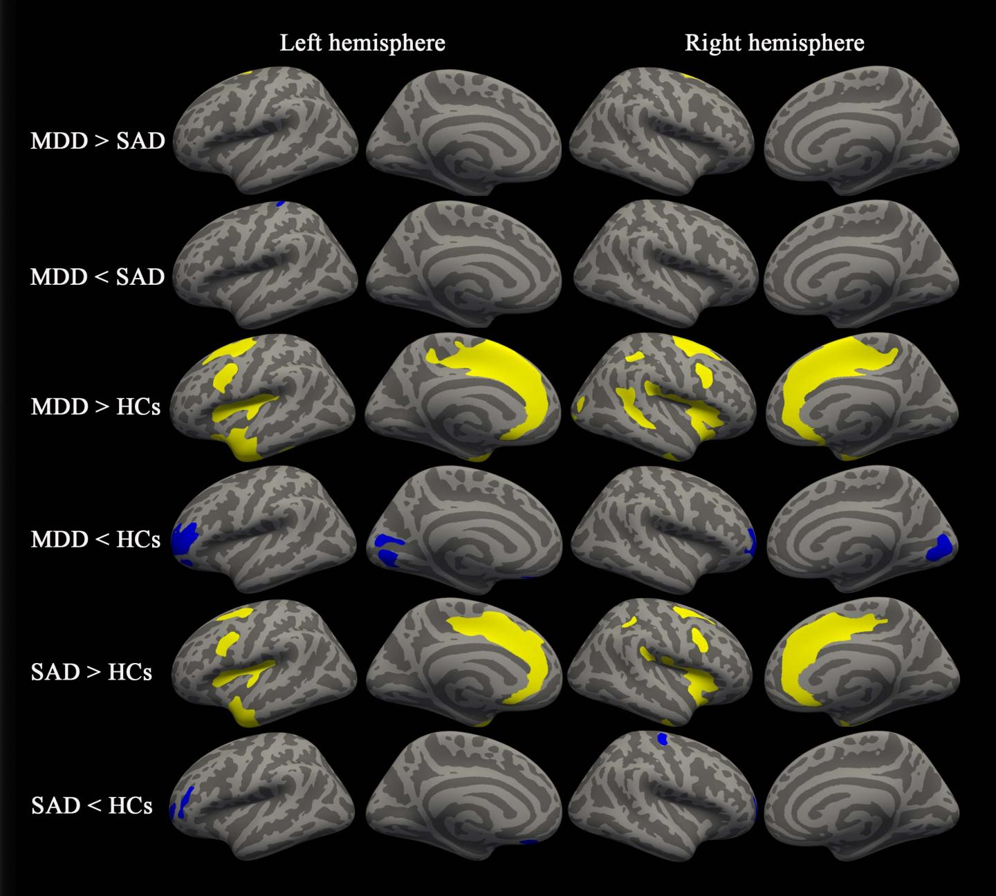 Between-Group Results for Cortical Thickness