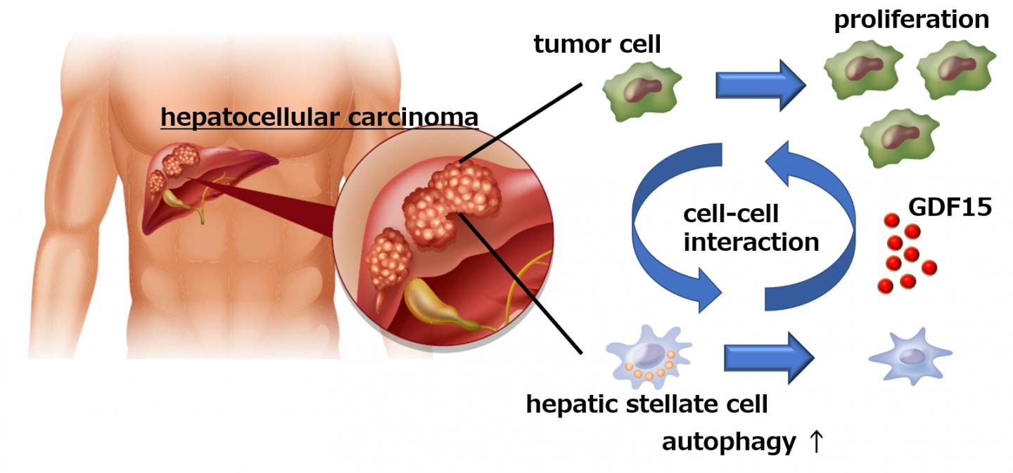 cancer hepatic cells