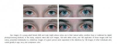 Study Image: Red & White Eyes