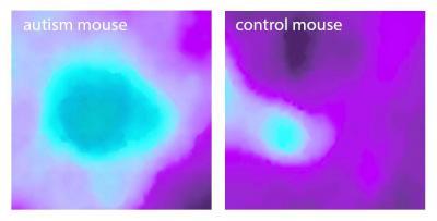 Autism Insular Cortex