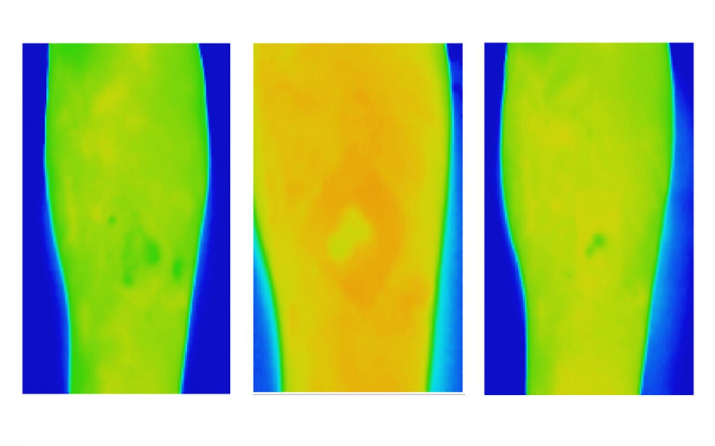 Thermal Imaging for VLU (Healed)