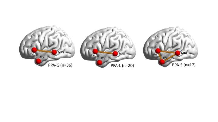 Impaired Brain Connection in Each PPA Subtype