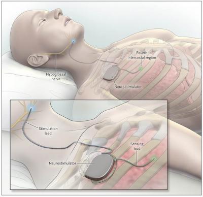 Inspire® Upper Airway Stimulation Therapy