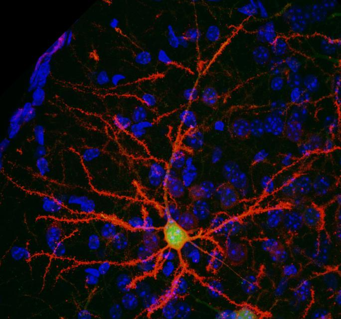 Neuron With Chemogenetic Receptor