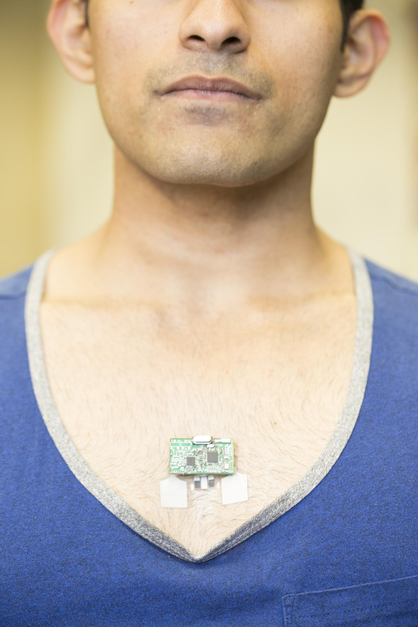 ChemPhys Patch Worn on the Chest