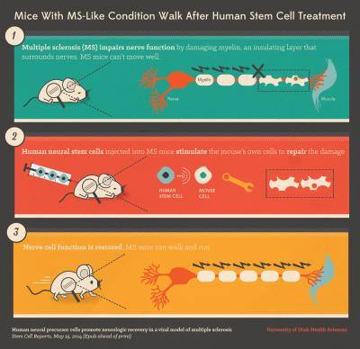 Mice With MS-Like Condition Walk Again After Human Stem Cell Treatment