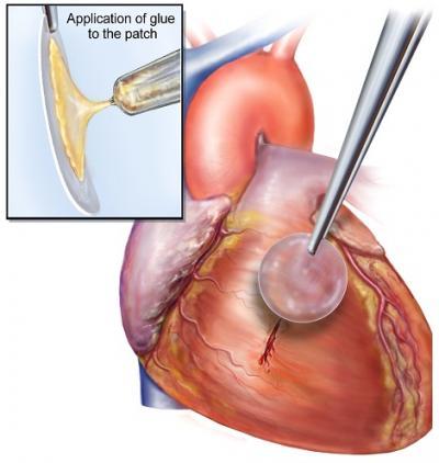 Bio-Inspired Glue Keeps Hearts Securely Sealed
