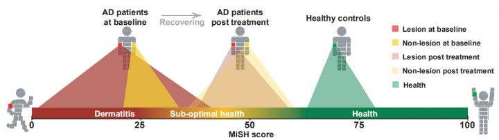 MiSH is a Universal Scale to Quantitatively Assess and Compare Skin-Health State via Skin Microbiota