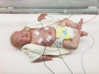 Baby Monitoring -- Traditional Method