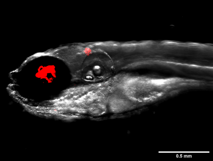 Zebrafish infected with fluorescent bacteria, Mycobacterium abscessus, shown in red