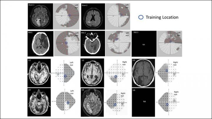 Neuroradiological Images