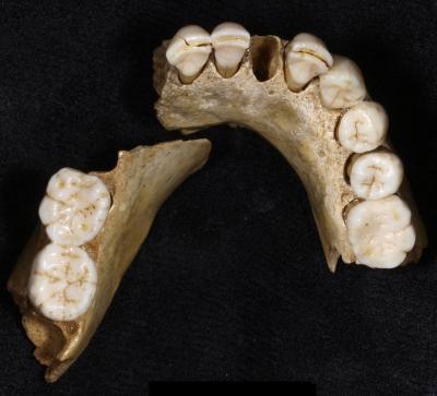 Neandertal Teeth
