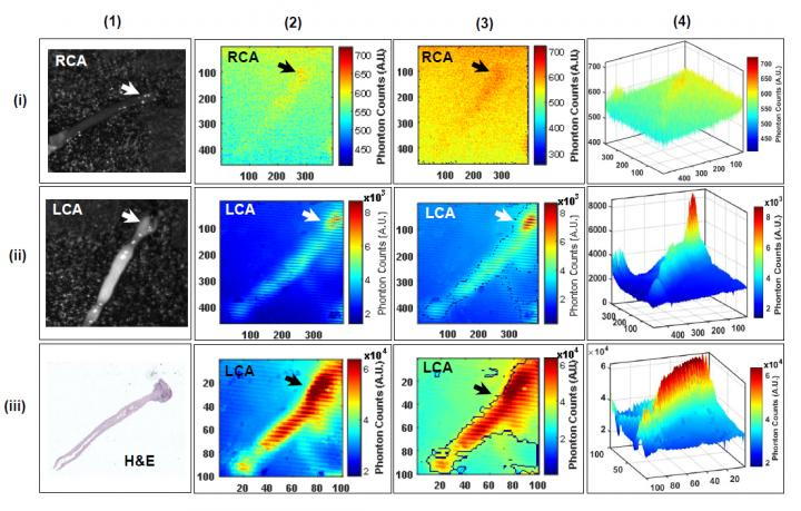 F-18-FDG Radioluminescence Imaging of Murine Arterial Sample