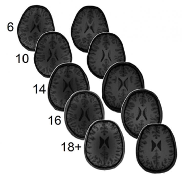 Neurotransmitter levels predict math ability
