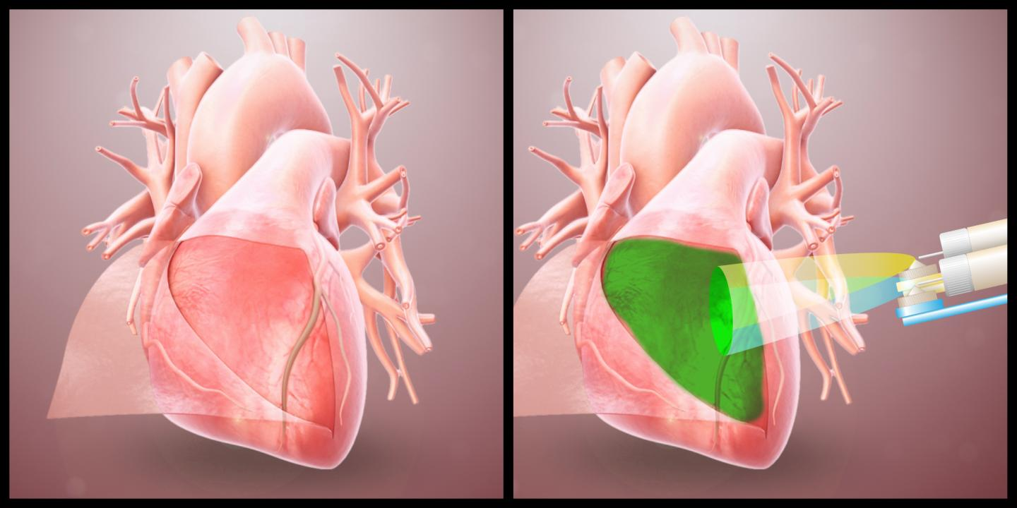 Device spraying hydrogel on the heart (illustration)