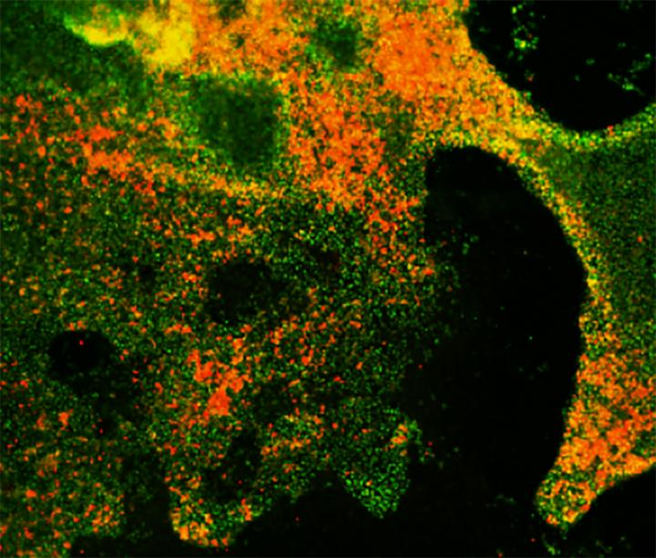 Formation of Neuroendocrine Cells from Lung Progenitors
