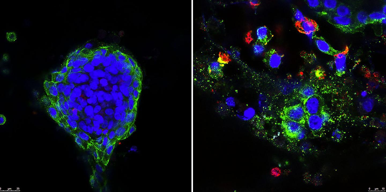 Combination Treatment Destroys Patient Tumor Tissue