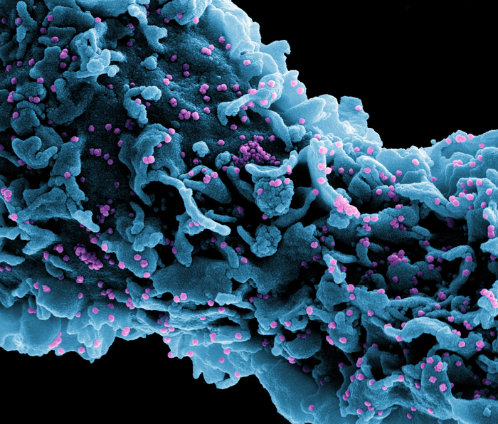 Image of cell infected with SARS-CoV-2