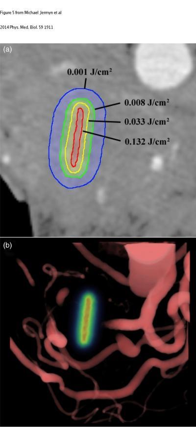 Single Axial Slice of the Pancreas