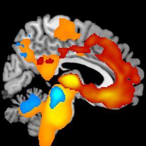 Brain MRI Showing Disease Progression over Time