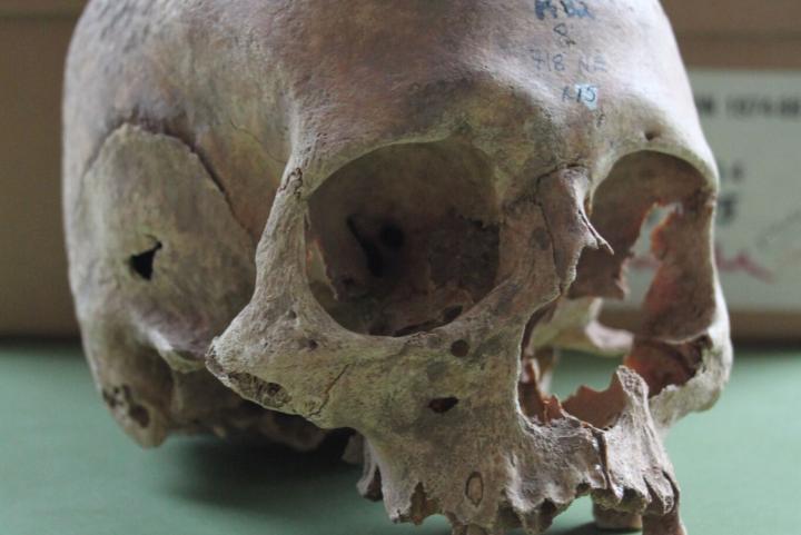 Female Skull