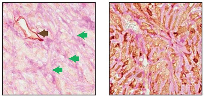 Tumor Cells Can Mimic Blood Vessels, Helping Cancer Spread