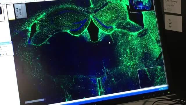 SBP's Dr. Aman Mann on Alzheimer's Discovery