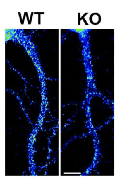 Levels of Kv4.2 Protein in Brain Cells