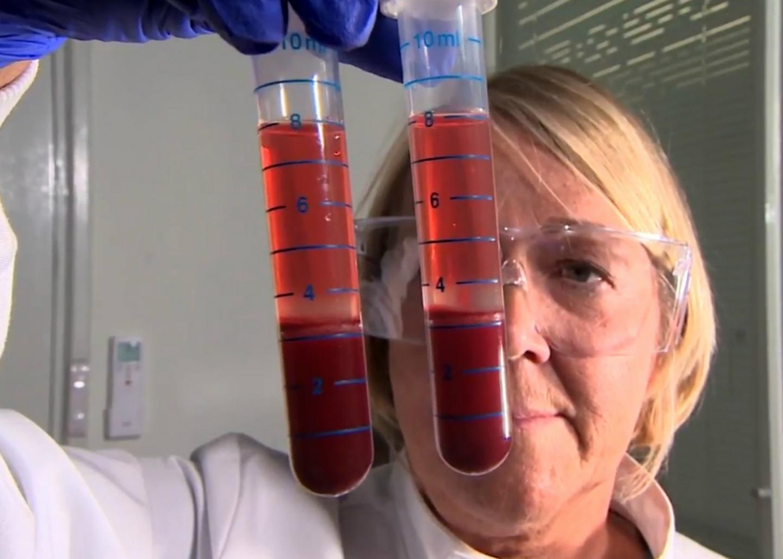 Preparing Blood Sample for Actiphage Testing