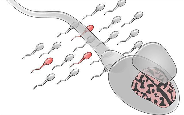 Sperm Graphic
