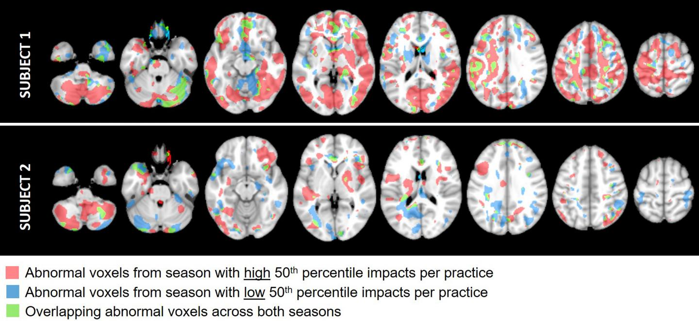 Imaging data from two youth football athletes