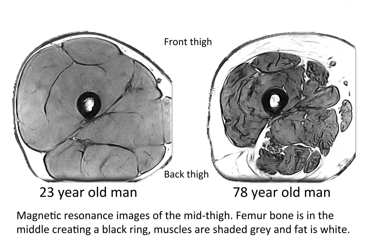 Magnetic Resonance Images of the Mid-Thigh