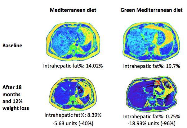 Ben-Gurion U. Study Green Med vs. Med Diet Intrahepatic Fat Loss