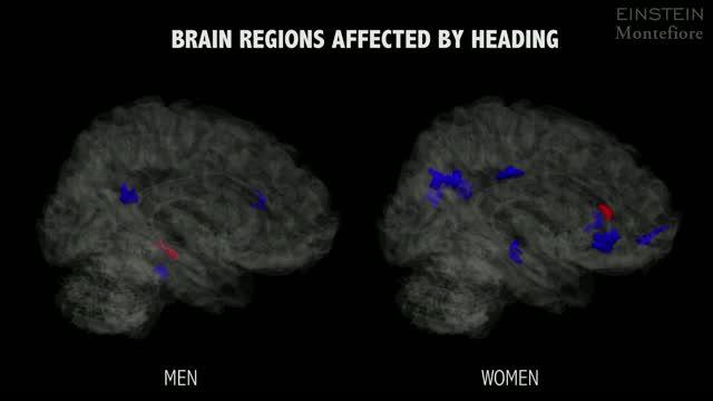 Brain Regions Affected by Heading