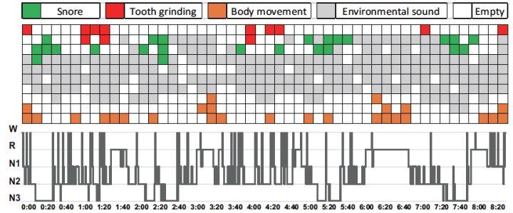 Figure Sleep Pattern Visualization by AI Method