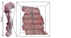 Illustration pancreas 3D