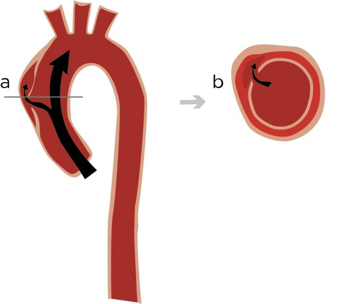 Aortic Dissection in the Chest