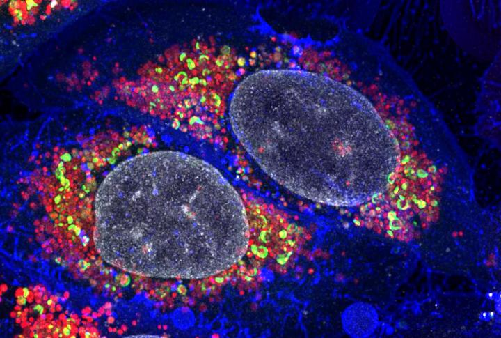 Damaged Mitochondria Targeted by Autophagy Receptors