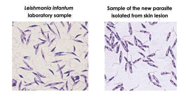 Paraziti leishmania tropica. Leishmaniaza cutanata – Medicina Calatoriei